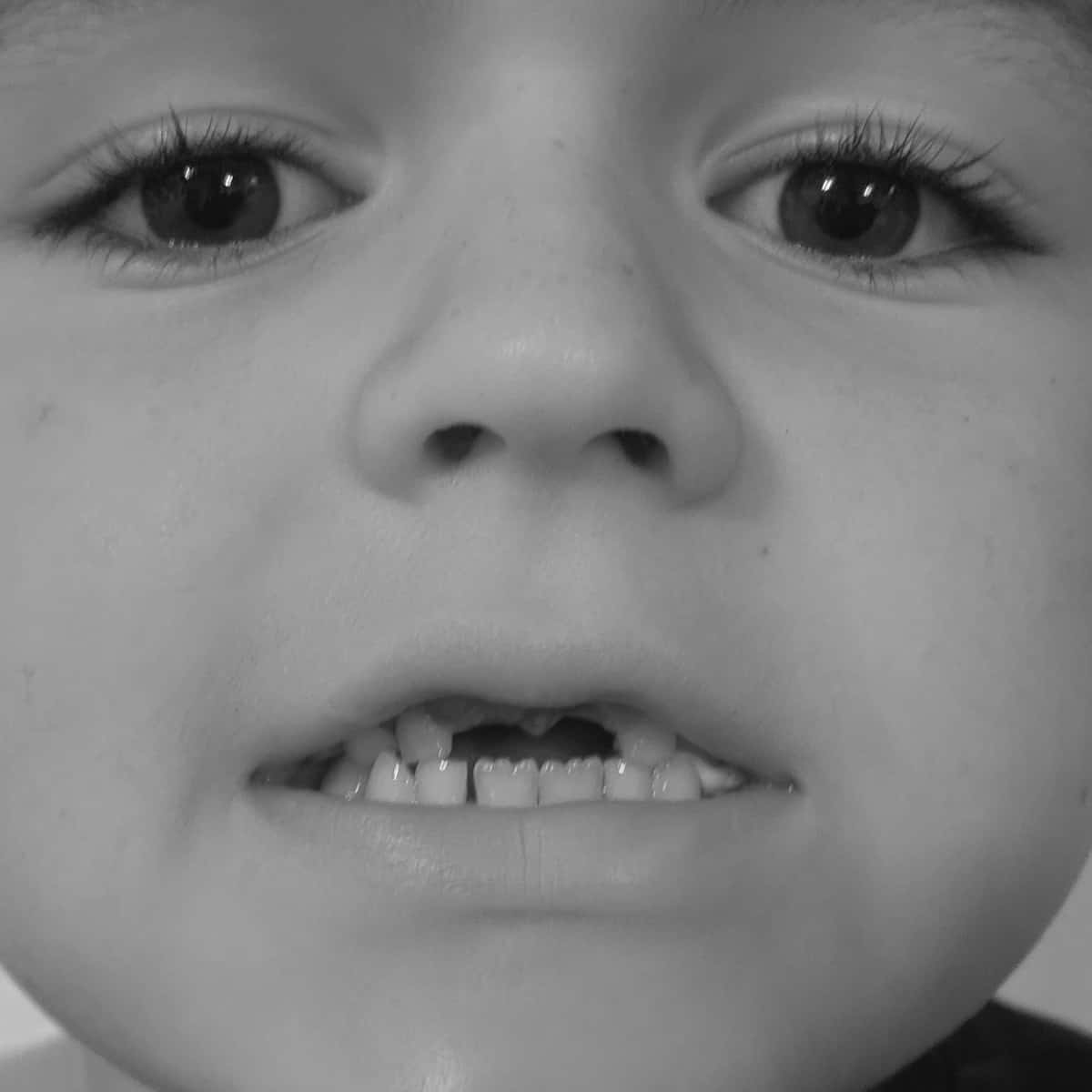 Boy missing front teeth
